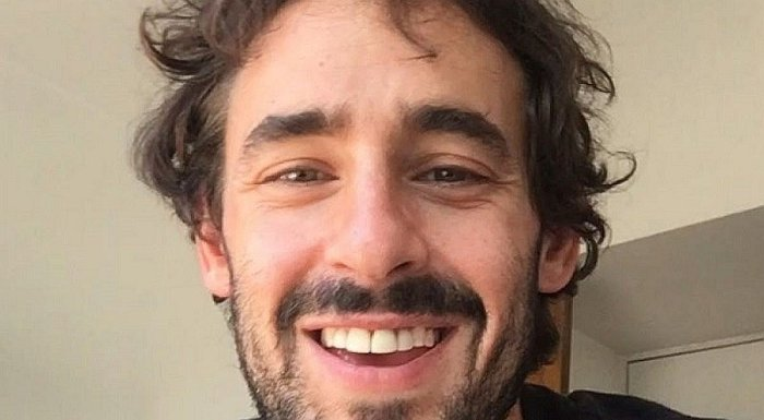 "Actor chileno pasa ""roche"" con su dentadura en Instagram (VIDEO)"